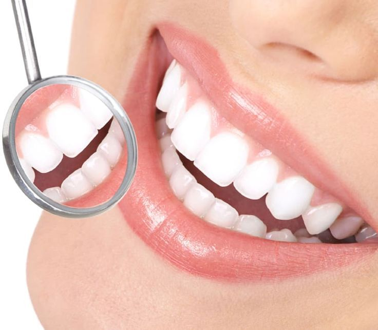 Dental Care of Nixa Cosmetic dentistry Oral hygiene, mouth ... #dentalcare