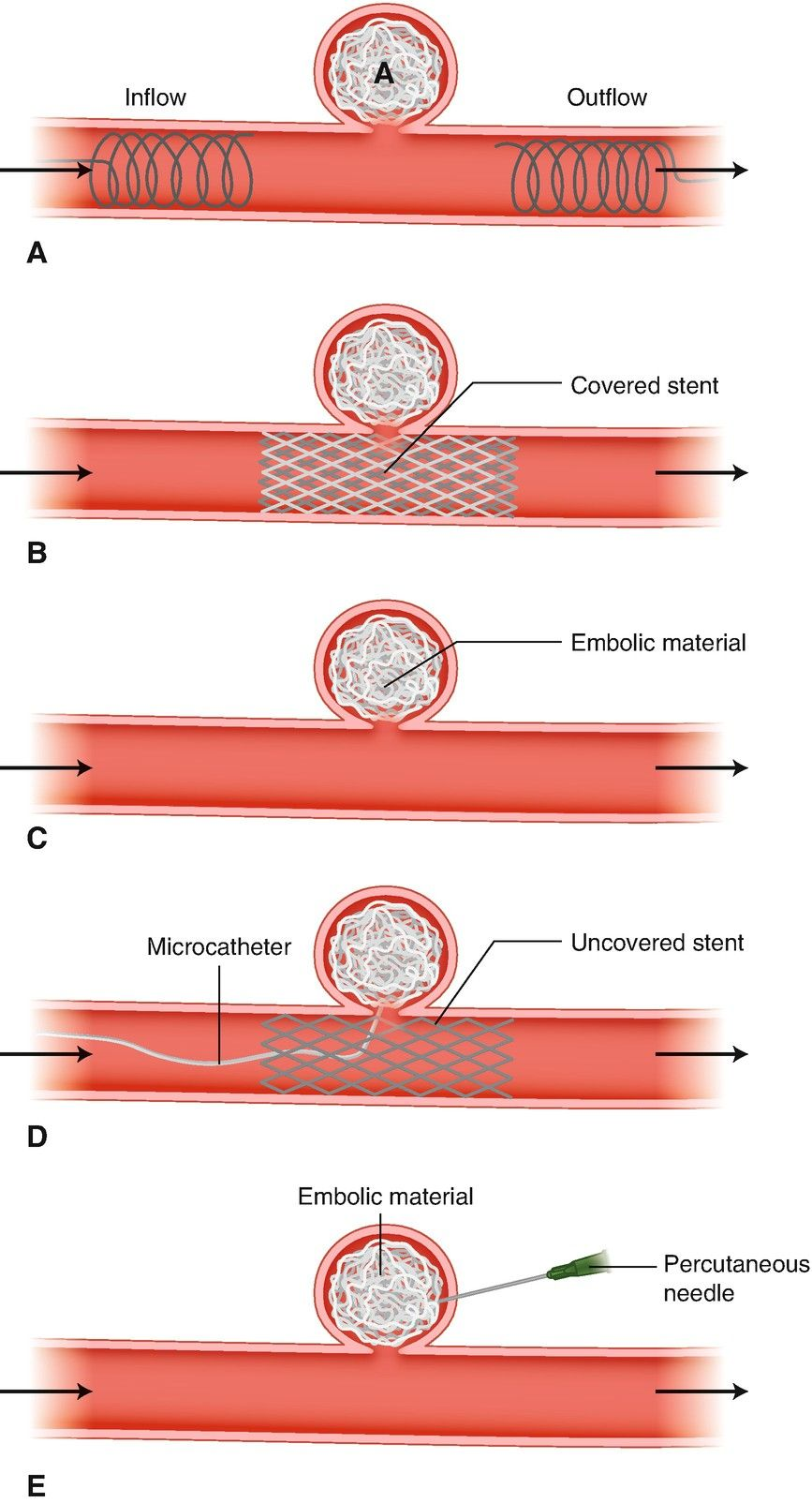 Pin by Lina Muhsen on Endovascular devices/interventions