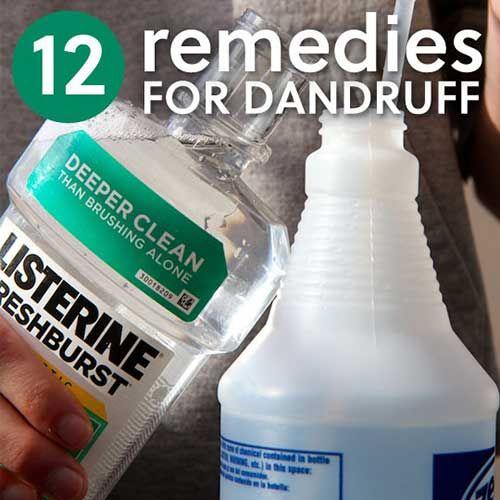 12 Homemade Dandruff Treatments & Shampoos