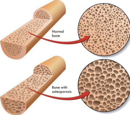 During the first few years after #menopause, women lose #bone density at a rapid rate which increases the risk of osteoporosis