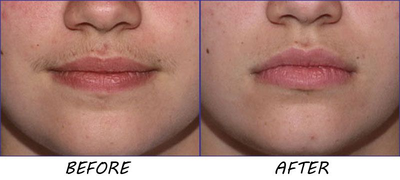 Upper Lip Hair Removal With Home Remedies Fashion And Style Upper Lip Hair Upper Lip Hair Removal Lip Hair Removal