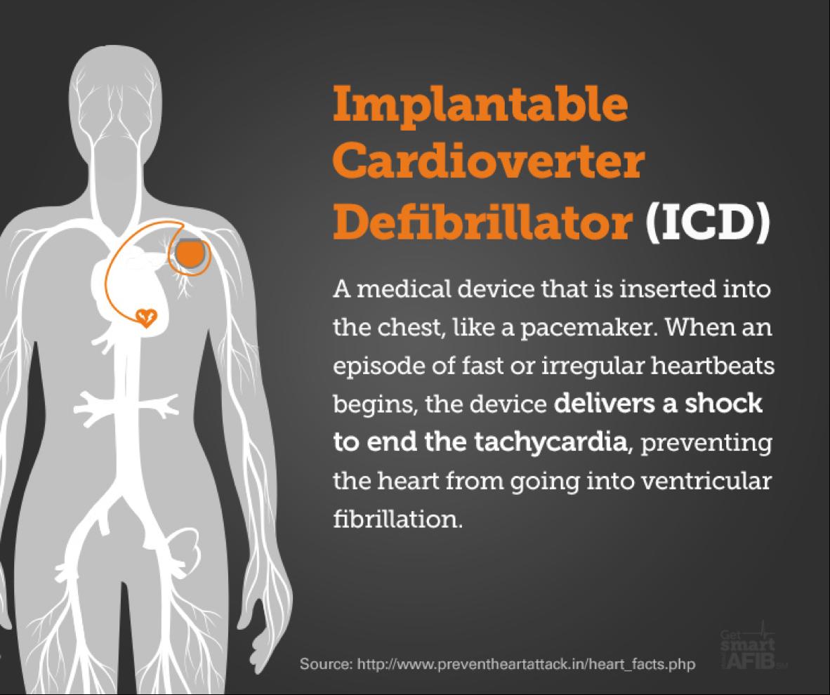 Orlando Health Heart Institute Is First in Florida to ... |Defibrillator Surgery Risks