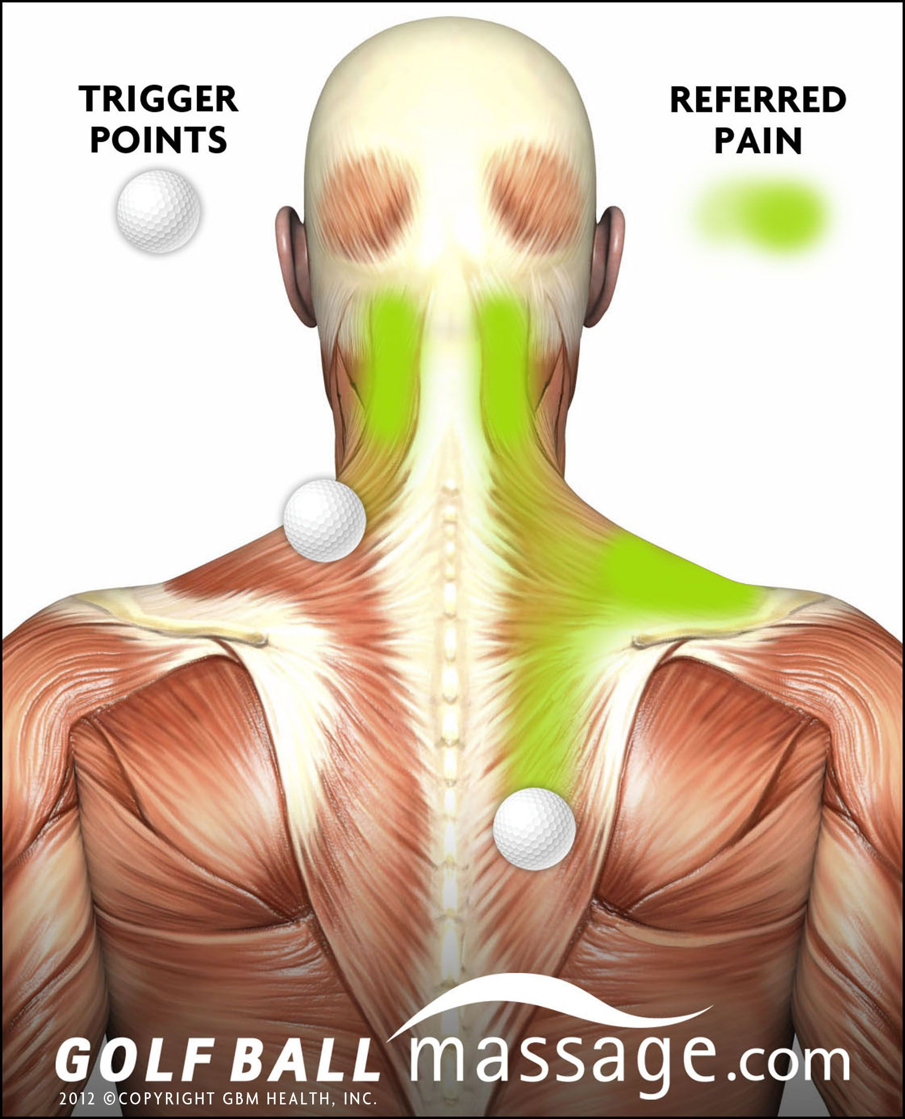 neck and sholder pain - where it starts and where you will actually ...
