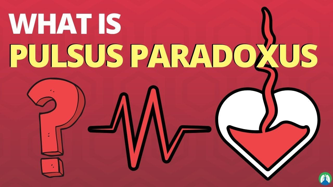 What is Pulsus Paradoxus? (Practice Question