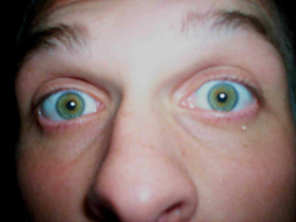 heterochromia eyes - Google Search | HETEROCHROMIA | Pinterest