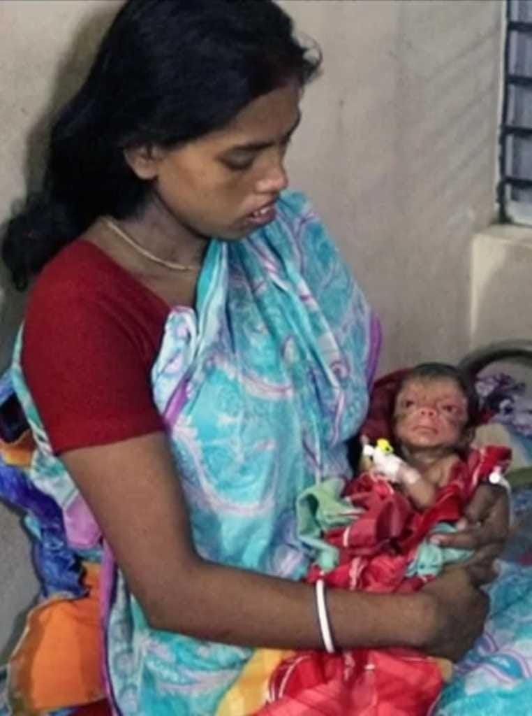 Bebê nasce com aparência de um idoso de 80 anos e impressiona médicos