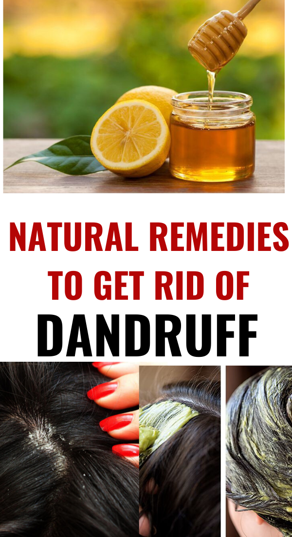 How To Get Rid Of Dandruff Naturally Permanently At Home