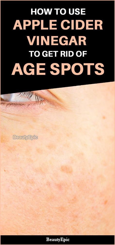 How to Treat Age Spots with Apple Cider Vinegar  is part of Apple cider vinegar for skin - Who doesn't want a flawless skin! Of course it is one of that complimenting features to have  Here are 5 best ways to use apple cider vinegar for age spots