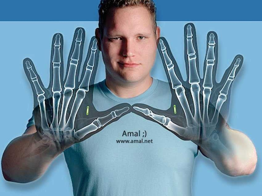 8 People Who Implanted Tech Gadgets Directly Into Their