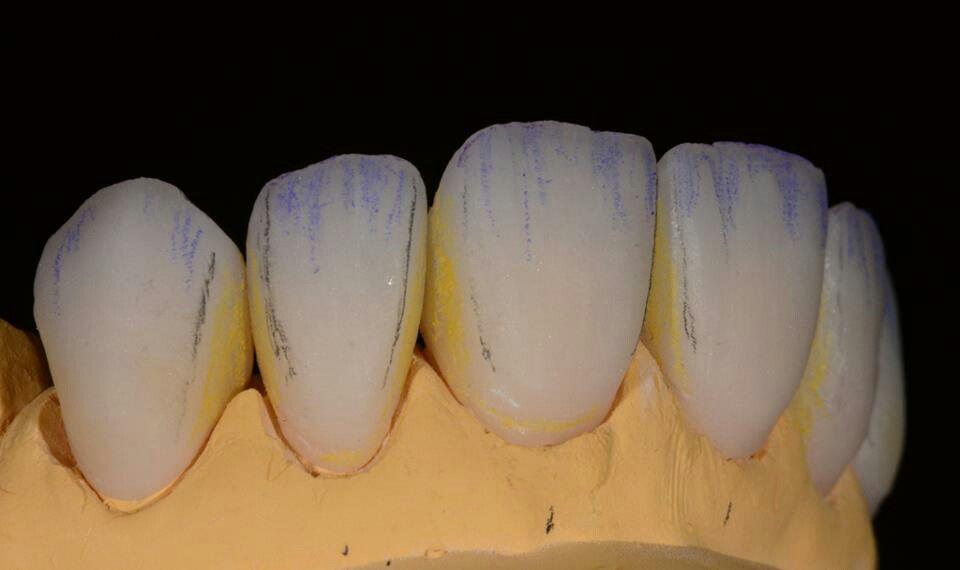 Pin by Ilker Kurt on my album   Pinterest   Dental, Dental anatomy ...