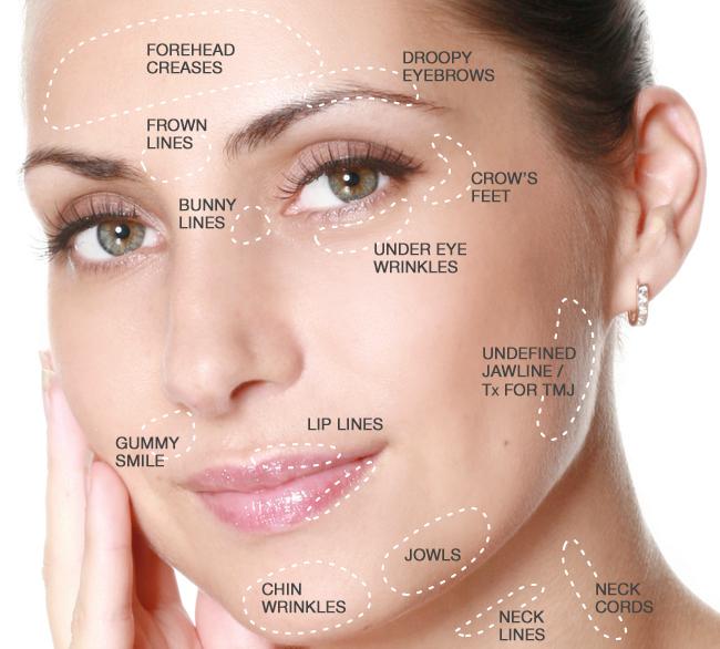 Botox Injections Botox Facial Aesthetics Under Eye Wrinkles