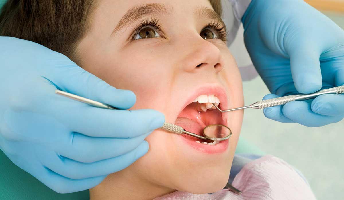 علاج تسوس الأسنان اللبنية عند الأطفال Dental Emergency Dental Dental Care For Kids
