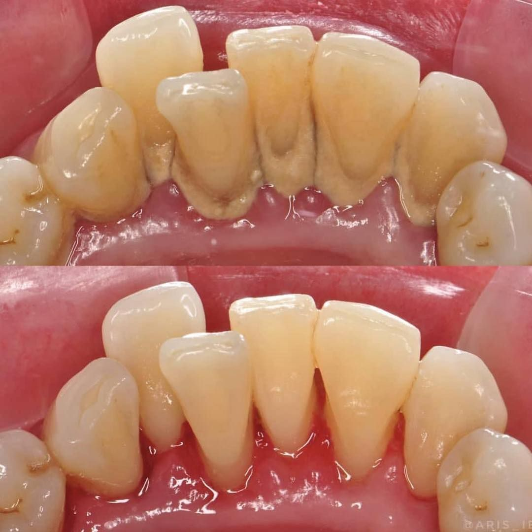 Teeth Scaling Before And After Dentalhygienist Scaleandpolish