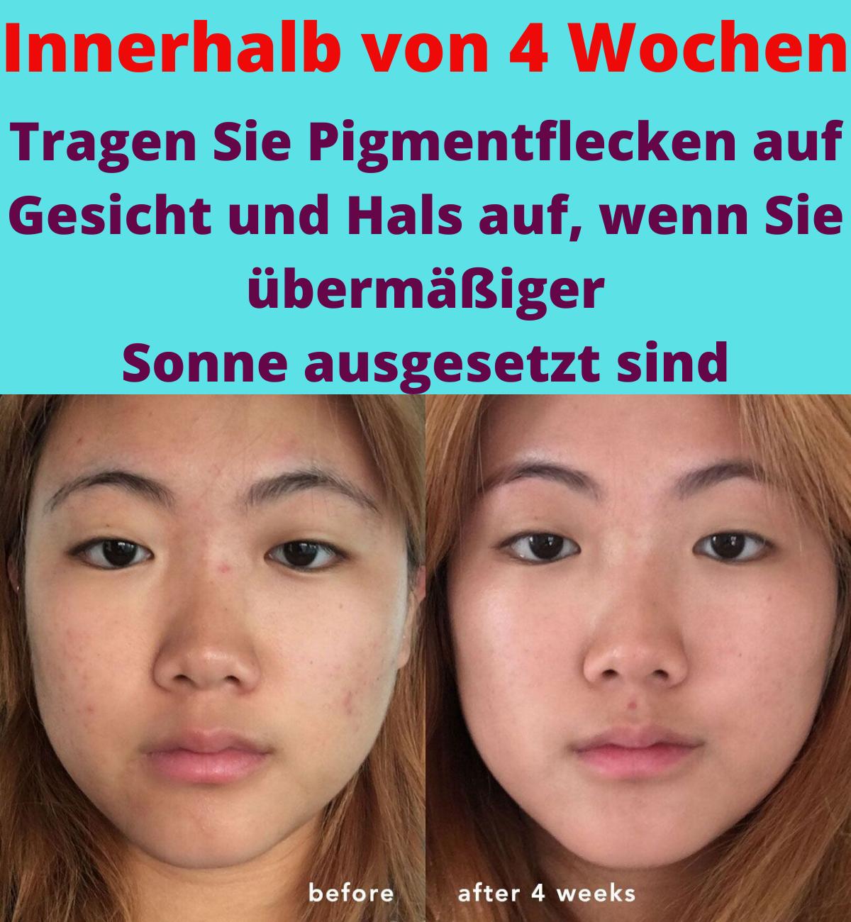 Entfernen Sie Pigmentflecken Im Gesicht Und Am Hals Innerhalb Von 4 Wochen Aufgrund Ubermassiger In 2020 Pigmentflecken Gesicht Gesicht Gesunde Hautpflege
