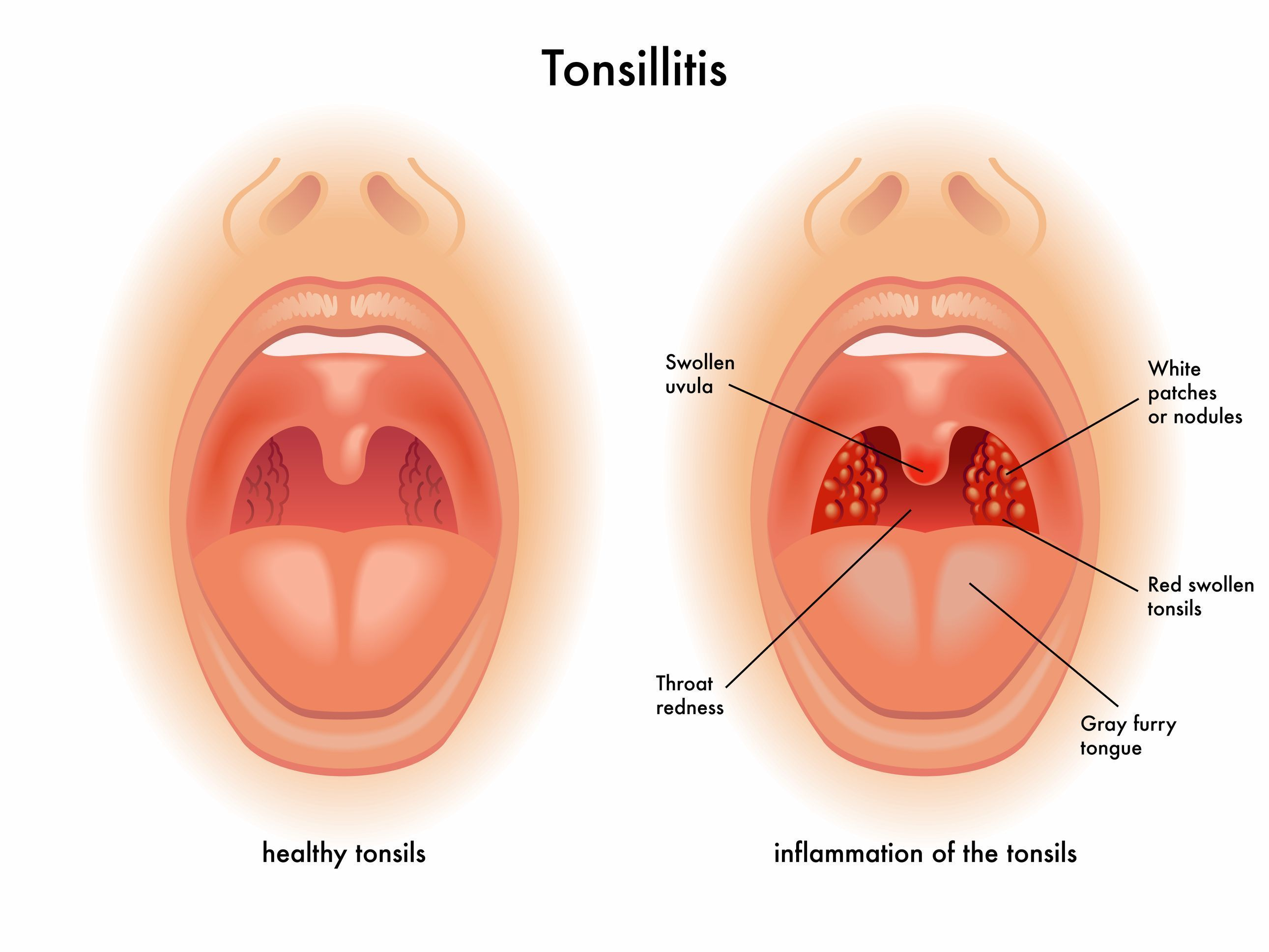 Tonsillitis Is A Condition That Causes Inflammation Of Tonsils