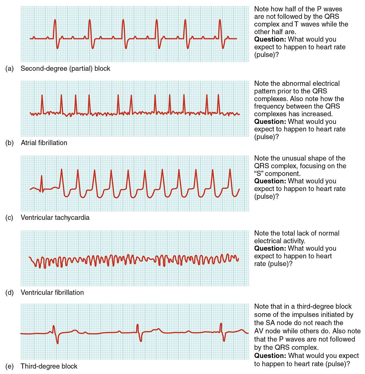 Different Forms Of Cardiac Arrhythmia Shown In An