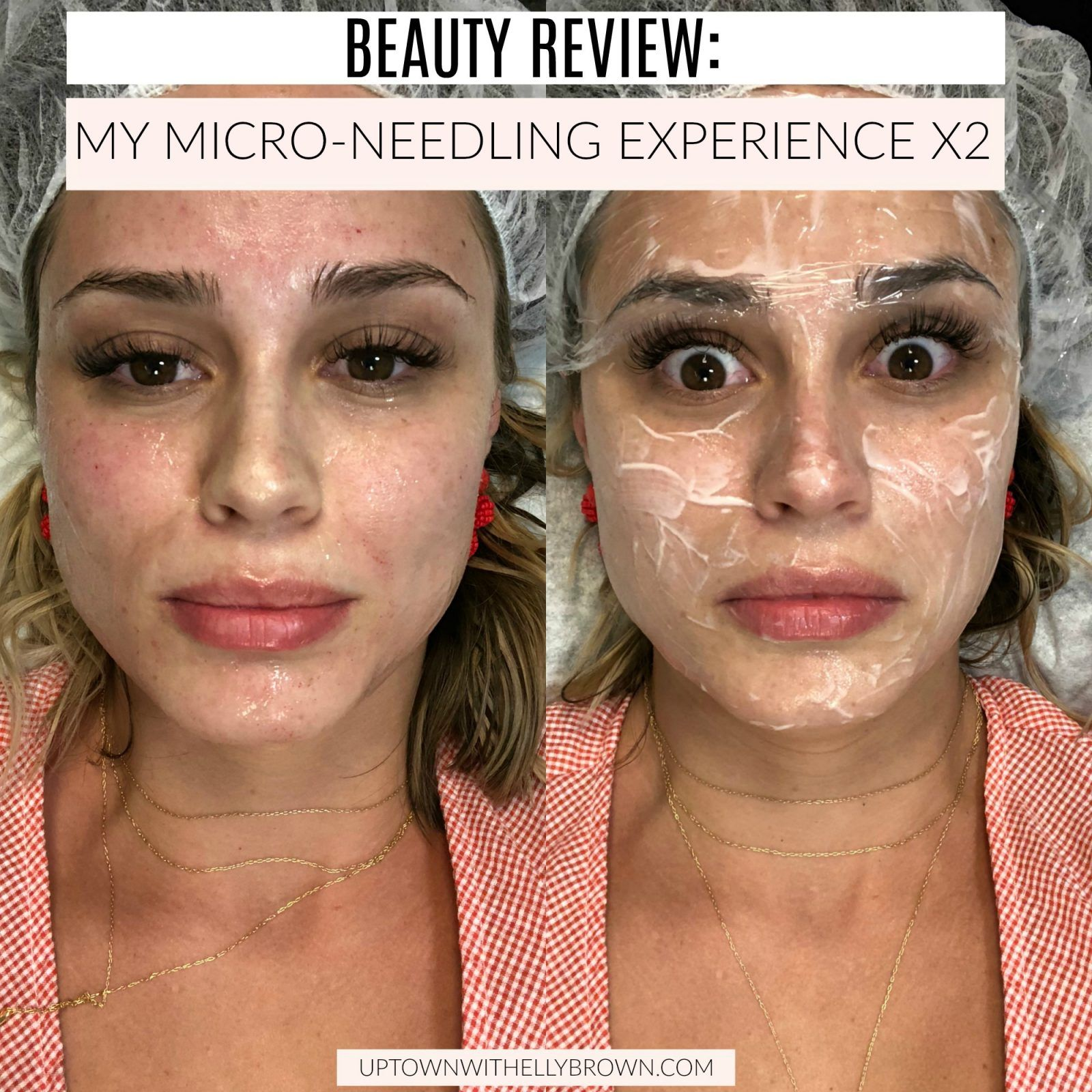 Permanent Skin Whitening Treatment Procedure Cost And Results