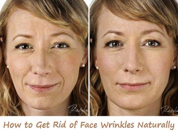 Home Remedies for Wrinkles | Beauty tips | Home remedies for