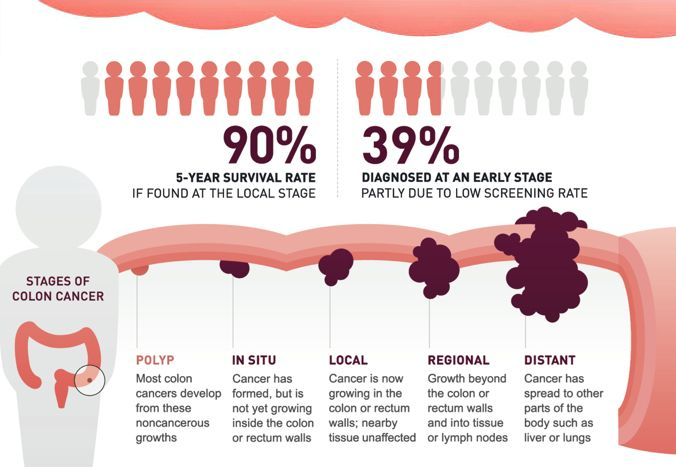 Undefined Colon Cancer Awareness Immunotherapy Cancer Cancer Stages