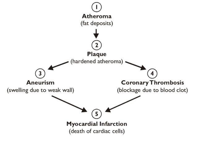Heart disease flow chart study pinterest aqa heart disease flow chart ccuart Gallery
