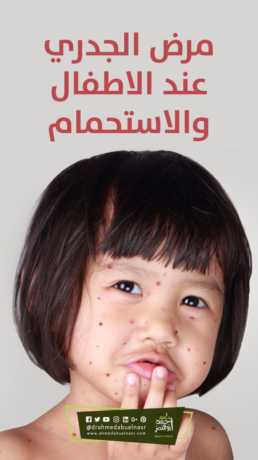 مرض الجدري عند الاطفال والاستحمام