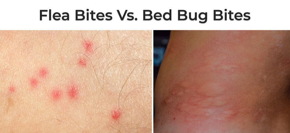 Flea Bite Dust Mite Bed Bug Bite