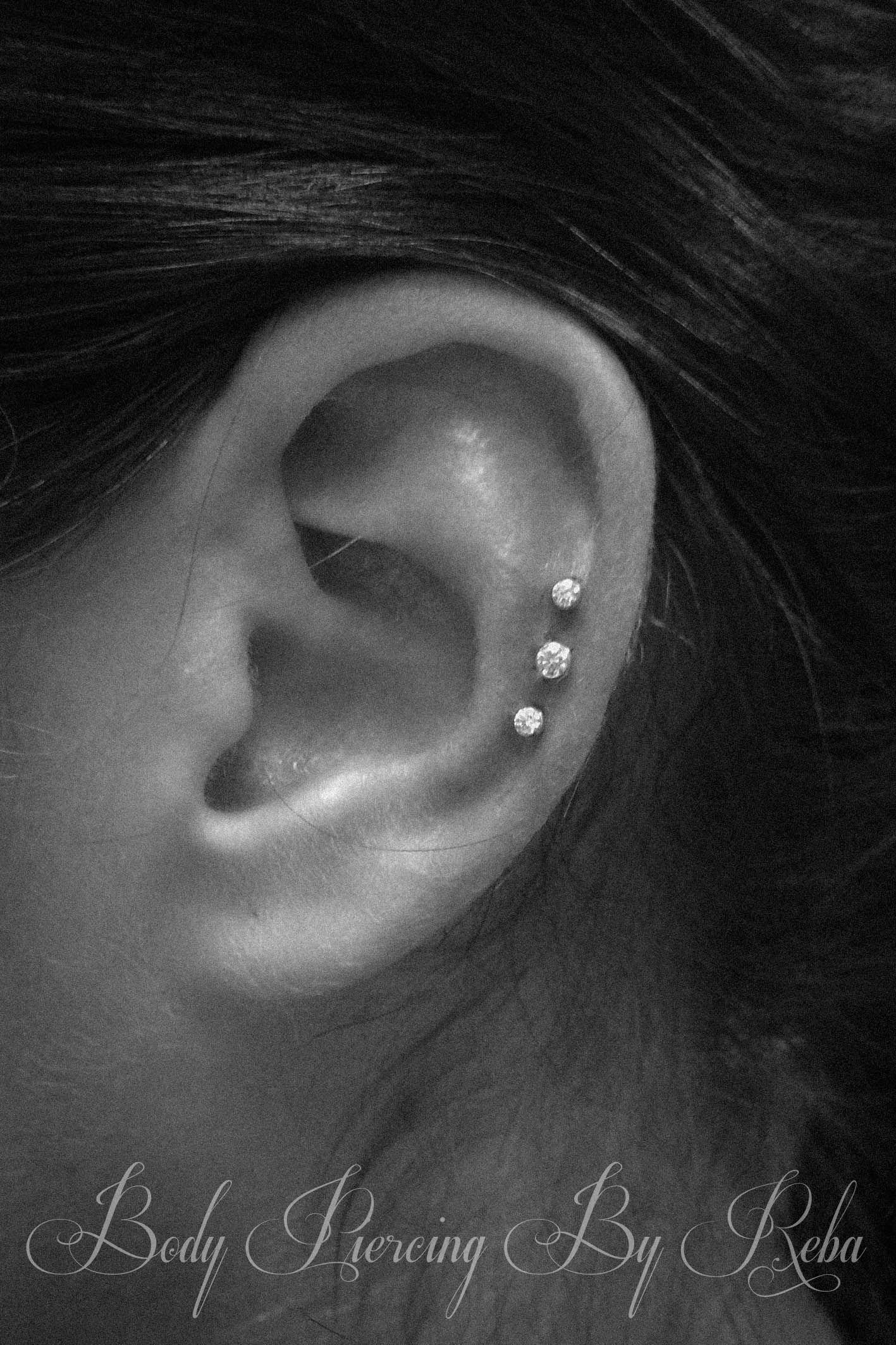 Triple Cartilage With Neometal
