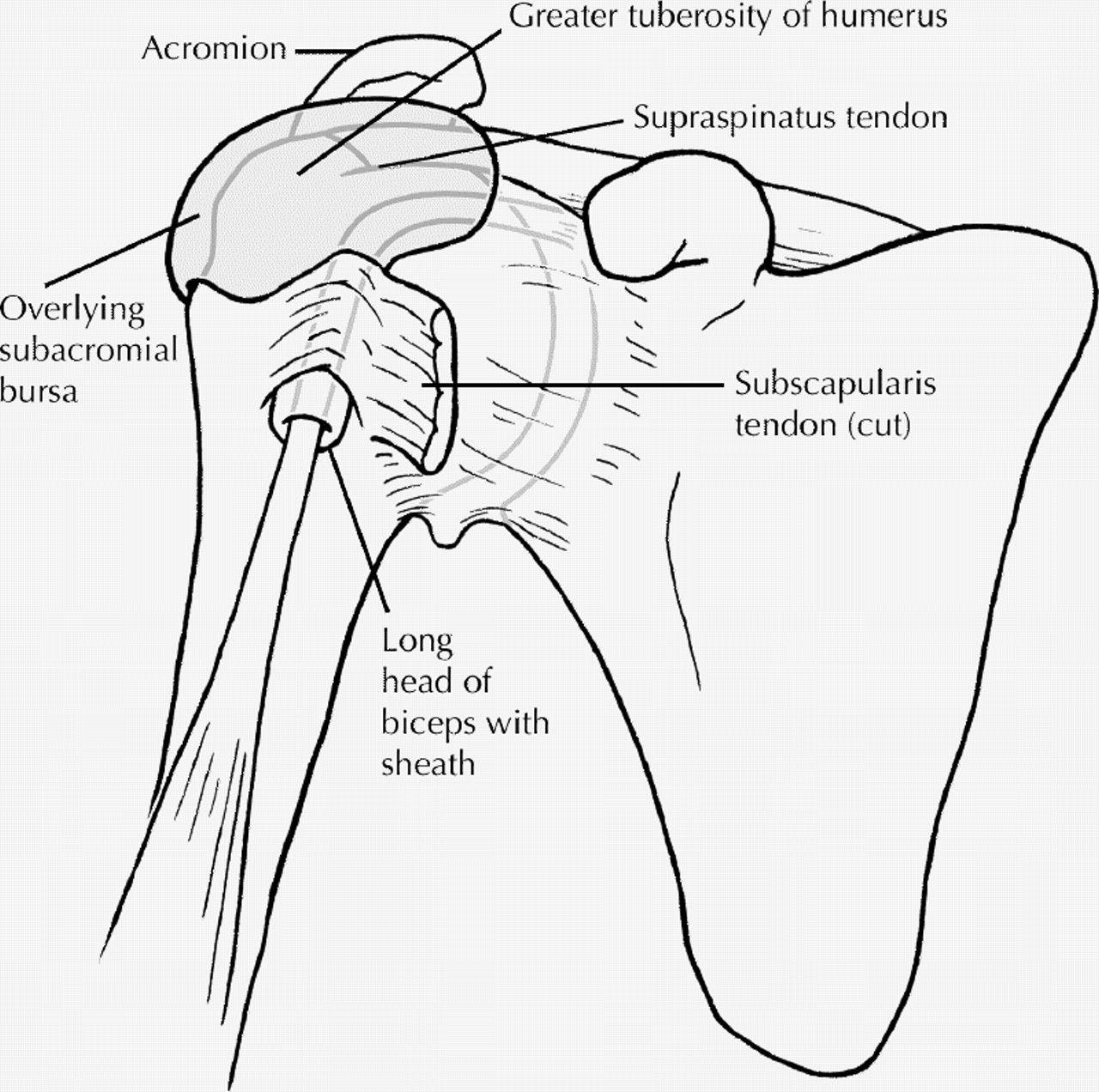 Rheumatology: 6. Localized rheumatism | Pinterest | Shoulder joint ...