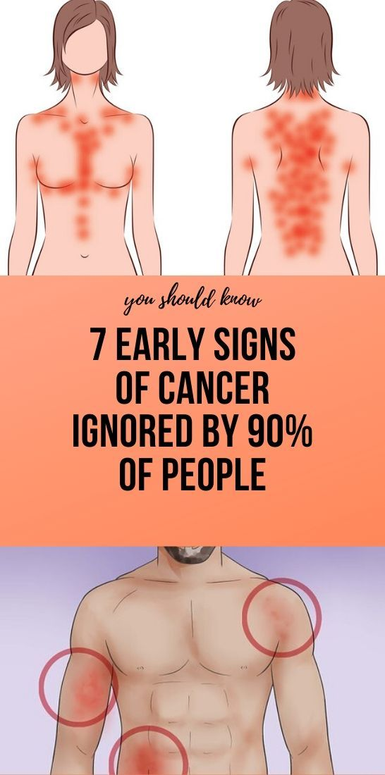Photo of 7 Early Signs of Cancer Ignored by 90% of People