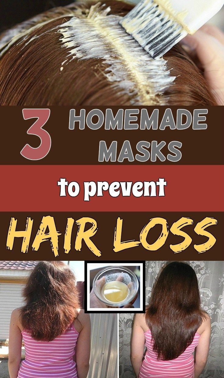 hair loss is not a problem anymore with this homemade remedies