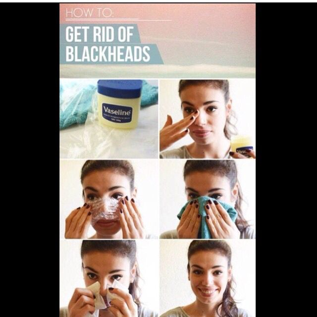 Blackheads be gone