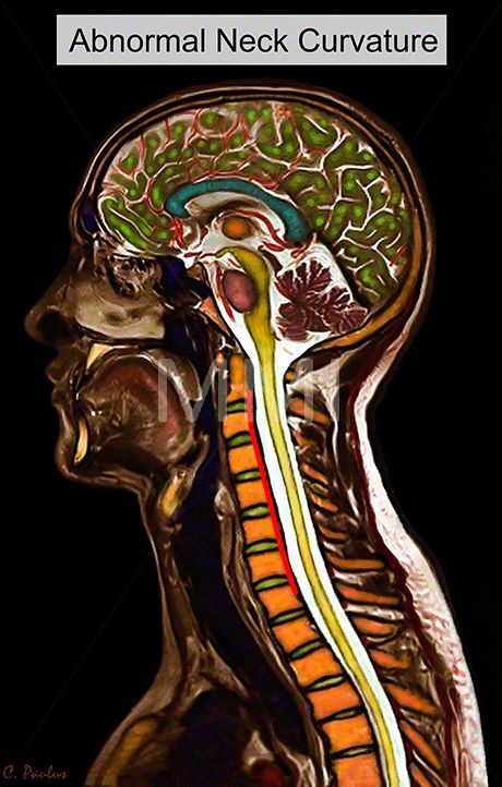 Brain Cervical Spine Anatomy Color MRI Images Hypolordosis | Body ...