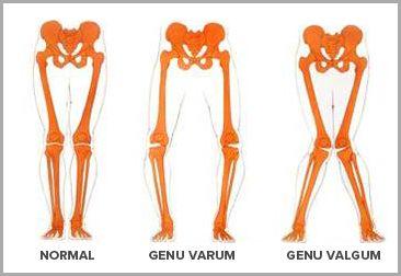 The 25+ best Genu valgum ideas on Pinterest | Genu varum ...