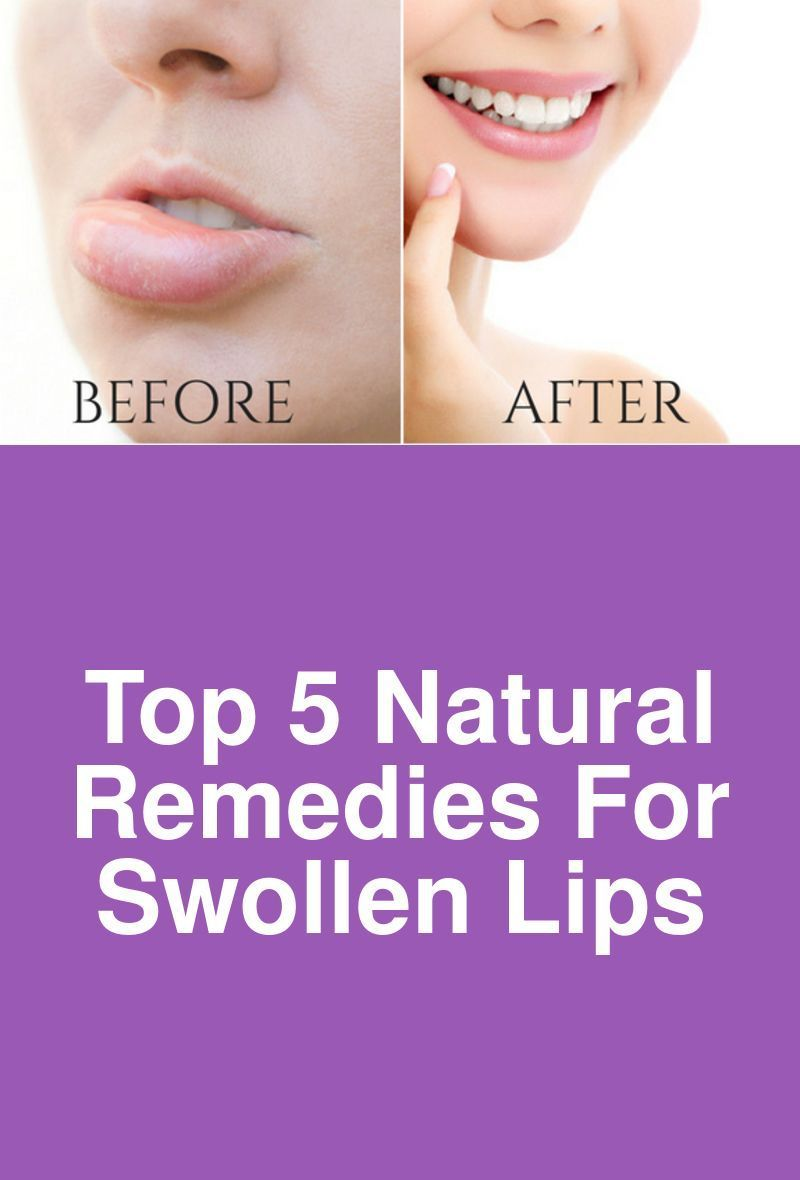 How To Get Rid Of A Boil On Your Lip