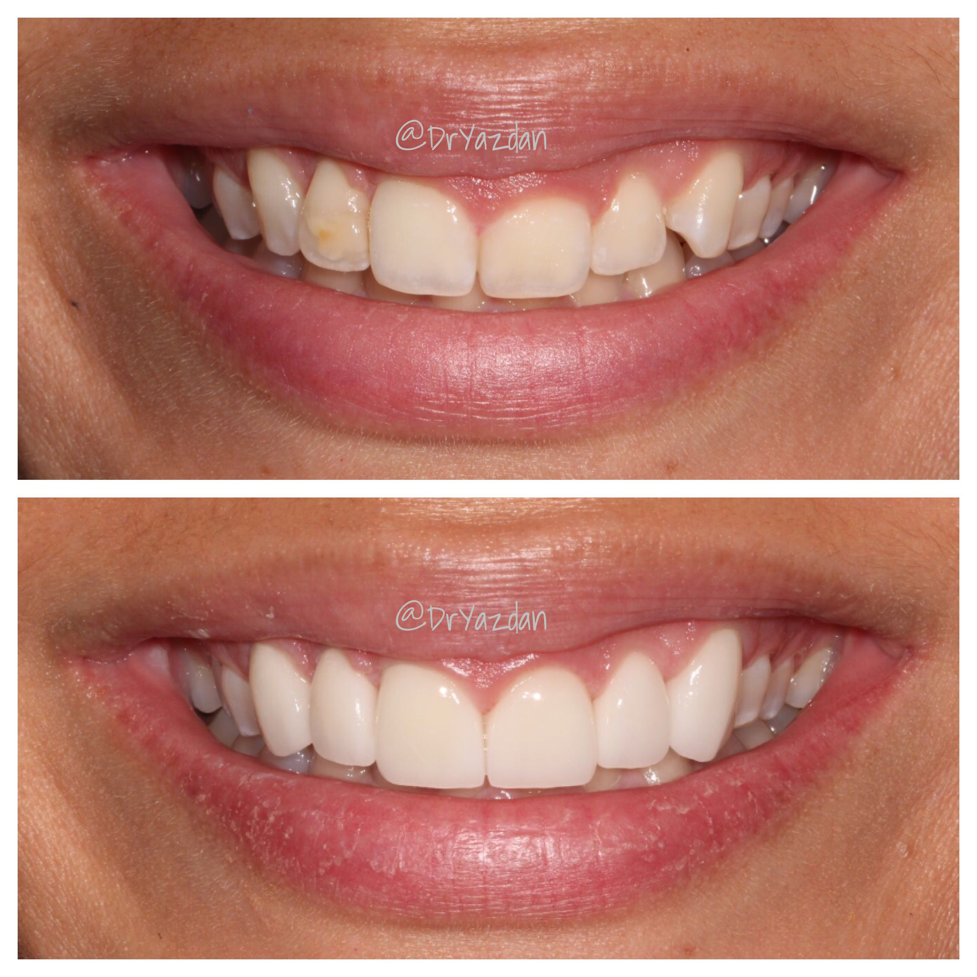 Smile makeover with just 7 porcelain veneers and some laser gum