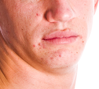 acne behandling