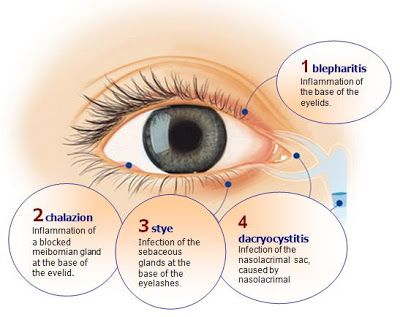 Exploring The World Of Vision A Little Bit Of Basic Ocular Eye Health Homeopathy Treatment Medical Knowledge