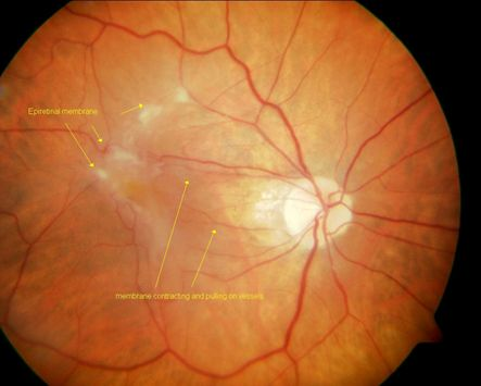 Posterior Vitreous Detachment Eye Health Optometry