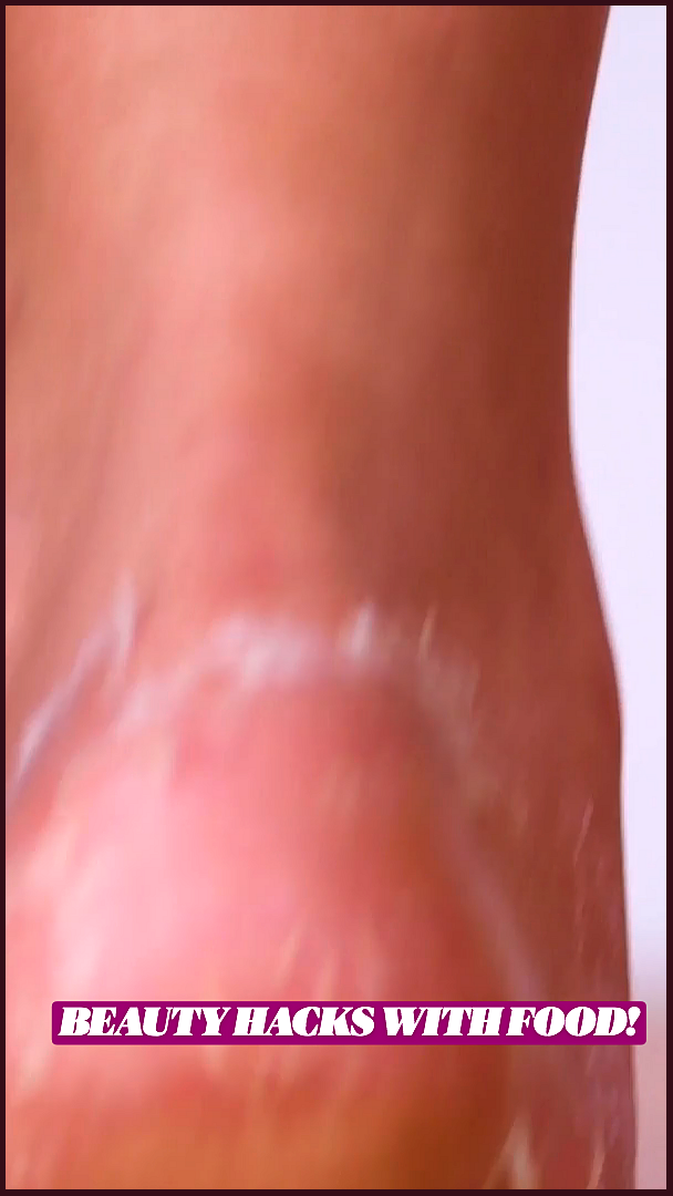 pernă din varicoză fotografie este posibil să se folosească yarina în varicoză