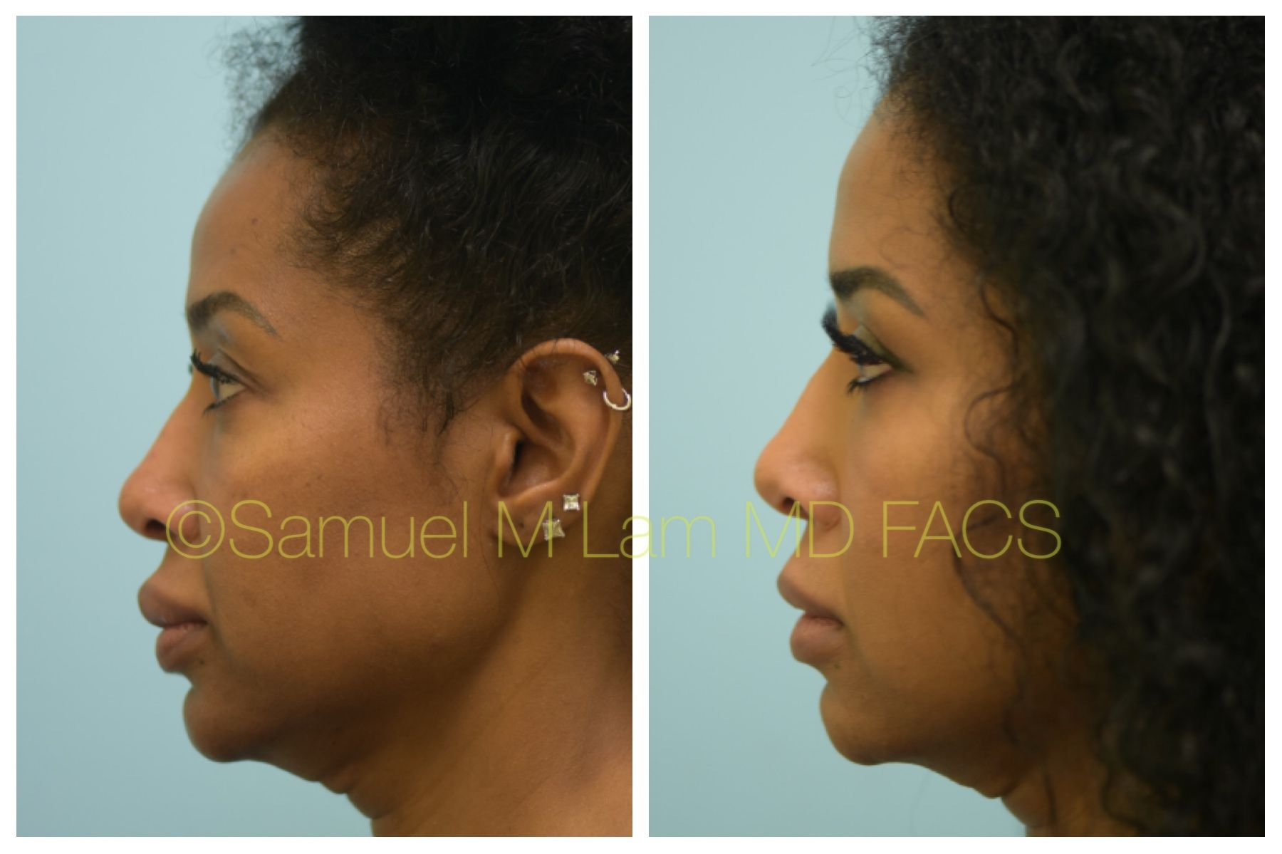 This African-American woman is shown before and 5 months after upper