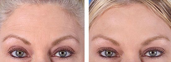 Botox before and after (scheduled via http://www ...