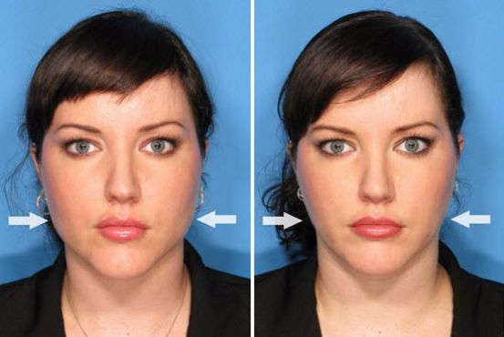 Botox in the masseter muscles can soften a round face or