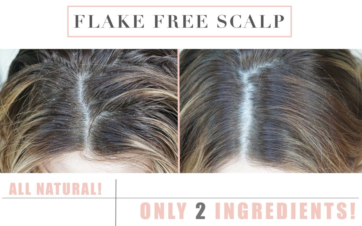 The Secret To A Flake Free Scalp Thick Hair Remedies Scalps Dry Scalp Remedy