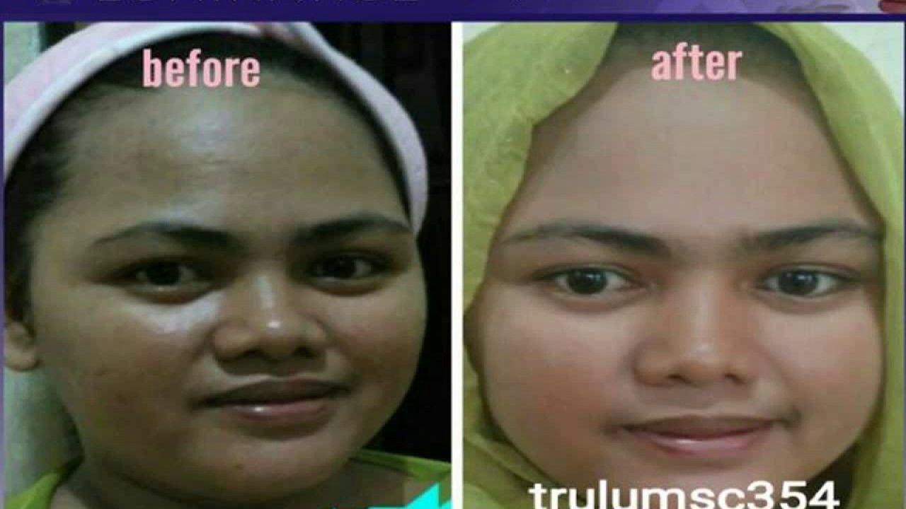 Pin On Wa 0812 5828 1208 L Cara Memutihkan Wajah Alami Dg Cepat Wanita Trulum Skincare Ampule