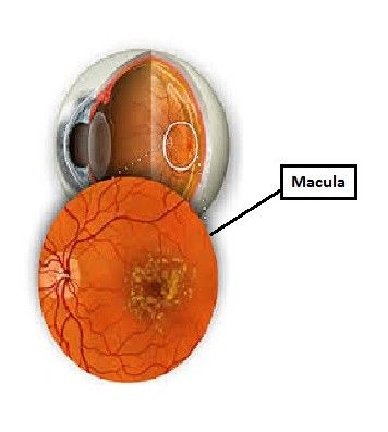 The macula is a highly-pigmented oval-shaped spot located in the centre back of the retina and is responsible for accurate focussing. A typical symptom of dry (non-neovascular) AMD is the accumulation of yellow spots called drussen in and around the macula, leading to the loss of central vision. Wet (neovascular) AMD occurs when new blood vessels begin to grow abnormally beneath the retina and cause a severe loss of vision, as the vessels begin to leak blood and fluid into the retina ...