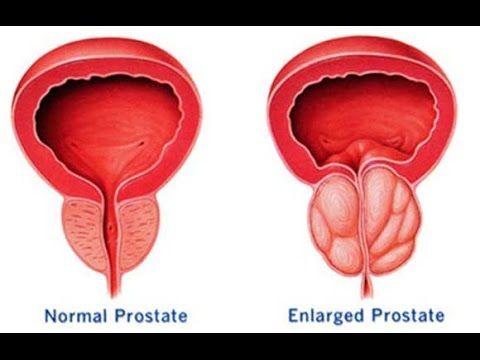 próstata agrandada nuevo fármaco para la cura