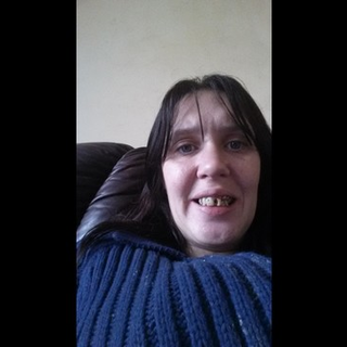 help with getting my teeth done - I would like to raise £1500 so I can have my teeth done I'm 30     and all my teeth are broken I never leave the house I'm so embarrassed    I want to be able to smile again I been in pain for ages all my teeth broken