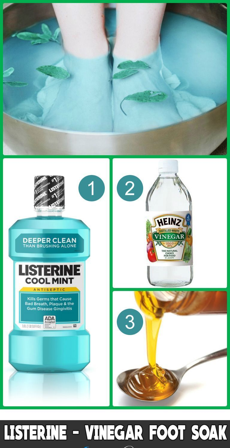 Listerine for Cracked Heels