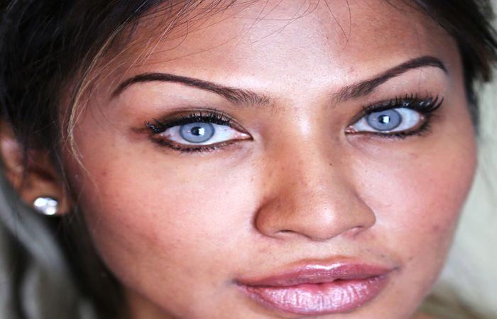 Eye surgery with permanently eye color change / change eye ...