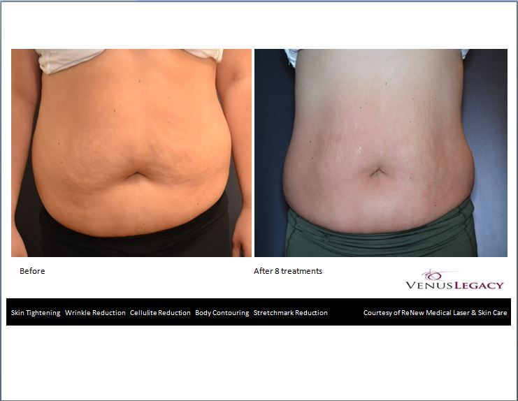 Our Very Own Before After Abdomen Fabulous Results Laser Skin Care Wrinkle Reduction Body Contouring